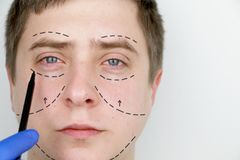 A man at the reception at the plastic surgeon. Before plastic surgery: eyebrow, forehead, chin and cheek lift stock images