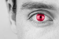 Man with red eye. Monochrome image with selective color of a young man with red eye, close up of his eye and eyebrow Stock Photography