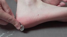 Man removing corn, callus from his feet using a razor file, masculine skin care, skin disease, fungal infection, skin. Treatment and healthcare, close up stock video