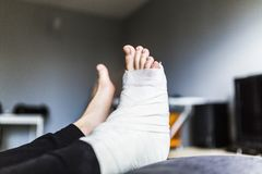 Resting with a broken leg at home. Man is resting with a broken leg at home stock photography