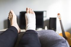 Resting with a broken leg at home. Man is resting with a broken leg at home stock photo