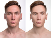 Man before and after retouch Stock Image