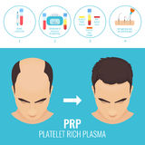 Man before and after RPR therapy Royalty Free Stock Photography