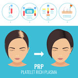 Man before and after RPR therapy. Platelet rich plasma injection procedure. PRP therapy process for women. Female hair loss treatment infographics. Meso therapy Stock Image