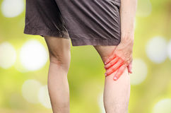 Man runner hold her injured leg. Suffering knee pain concept Royalty Free Stock Images