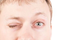 Man's blinking eyes Stock Images