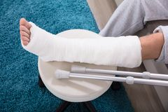 Man`s Broken Leg. Elevated View Of Man`s Broken Leg In Cast royalty free stock photo