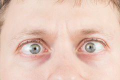 Man's crazy eyes Royalty Free Stock Image