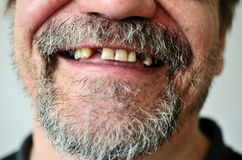 Man's face with a smiling toothless Stock Image