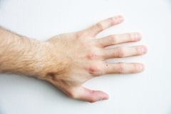 Man's hand Stock Photo