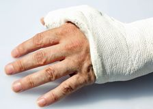 Hand with fractured bones in the orthopedic hospital emergency. Man`s hand with fractured bones in the orthopedic hospital emergency room stock image