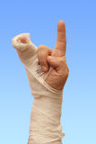 Man's hand in plaster Royalty Free Stock Images
