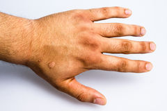 Man's hand with scar from cigarette burn. Man's hand showing a perfectly round scar from where a cigarette was stubbed out as means of torture Stock Photos