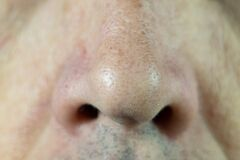 The man`s nose is close-up. Pores in the skin