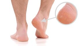 Man`s dry heel. Care for feet and heels. Man`s pair of feet. Care for feet and dry heels Royalty Free Stock Photos