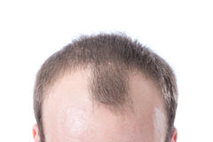 Man's Receding Hairline. A white male with brown hair's receding hairline on a white background royalty free stock photo