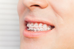 Man`s smile with dental braces on teeth Stock Photo