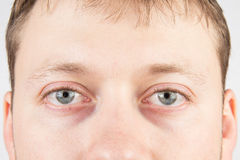 Man's tired eyes. Man's tired gray eyes, clean skin stock photo