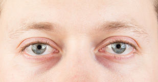 Man's tired eyes. Man's tired gray eyes, clean skin royalty free stock photo