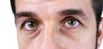 Man's vey tired eyes. Great detail macro of a very tired or sick middle aged man, with wrinkles, sun damage, veins and dark circles under the eyes showin, no stock photography