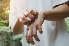 Man scratch itch with hand. Man scratching his hand healthcare c. Oncept royalty free stock photo