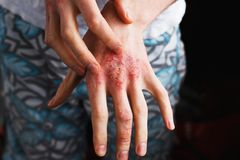 Man scratch oneself, dry flaky skin on hand with psoriasis vulgaris, eczema and other skin conditions like fungus royalty free stock images