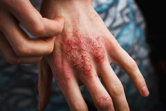 Man scratch oneself, dry flaky skin on hand with psoriasis vulgaris, eczema and other skin conditions like fungus royalty free stock image