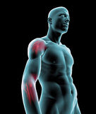 Human x-ray with arm pain royalty free illustration