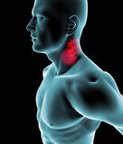 Man seen from the side with sore throat. And sore neck Royalty Free Stock Photography