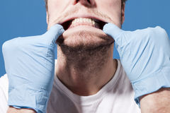 Man Showing Gums. A man with a beard has his gums revealed by two hands with blue latex gloves stock photography