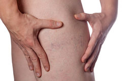 Man shows hand seat with the dilation of small blood vessels of the skin on the leg. Stock Image
