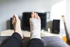 Man in front of the TV with a broken leg. Man is sitting in front of the TV with a broken leg stock photos