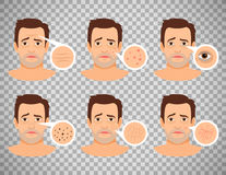 Man skin problems. Vector illustration. Male face with pimples and dark spots, wrinkles and acne isolated on transparent background Royalty Free Stock Image