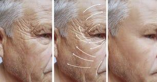 Man skrynklor på framsida, tillvägagångssätt för patient för skillnad för korrigeringscosmetologyterapi före och efter arkivbilder