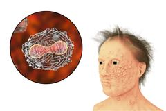 A man with smallpox infection and variola virus, a virus from Orthopoxviridae family that causes smallpox Royalty Free Stock Images