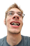 Man smiling showing his braces Stock Photos