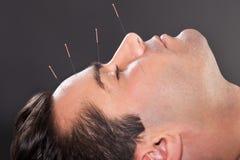 Man som genomgår akupunkturbehandling Arkivfoton