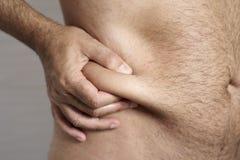 Man som griper fettet av hans flank arkivfoto