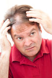 Man som oroas om att bli skallig Arkivbild
