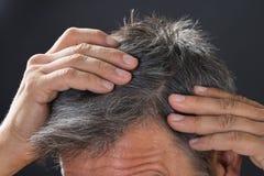 Man som undersöker hans vita hår royaltyfria foton