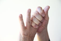Man with sore fingers Royalty Free Stock Photos