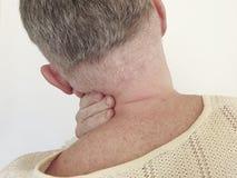 Man sore neck vertebral symptom stress scoliosis suffering inflammation. Man sore neck symptom vertebral suffering inflammation scoliosis stress royalty free stock images