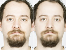 Man with spotty skin with deep pores and blackhead and healed. Before after face of a young man stock photos