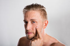 Man Squeezing Pimple On His Face. Acne Skin Problem royalty free stock images