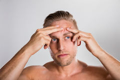 Man Squeezing Pimple On His Forehead royalty free stock photo