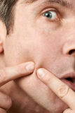 Man squeezing a pimple Stock Photography
