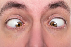 Man is squinting, closeup, concept strabismus. Adult man is squinting, closeup, concept strabismus Stock Images