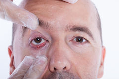 Man with an stye Stock Image