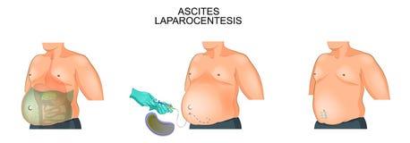 A man suffering from ascites. Laparocentesis. Vector illustration of a man suffering from ascites. Laparocentesis Royalty Free Stock Image