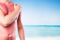 Man with a sunburn. Isolated on white background stock photos